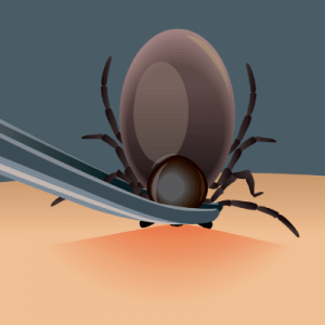 fall tick prevention tick removal with tweezers